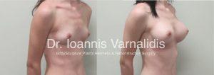 αυξητική στήθους breast