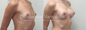 breast augmentation αυξητική στήθους